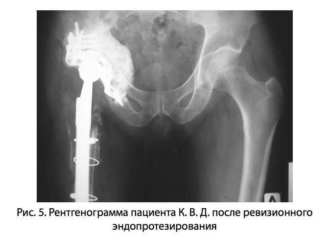 безоперационное лечение вывиха коленного сустава у собак