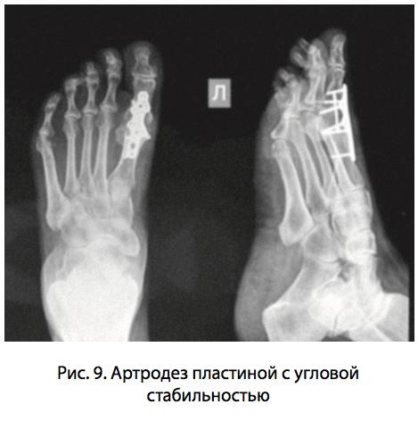 Ригидность 1 плюсне-фалангового сустава лангета на коленный сустав цена