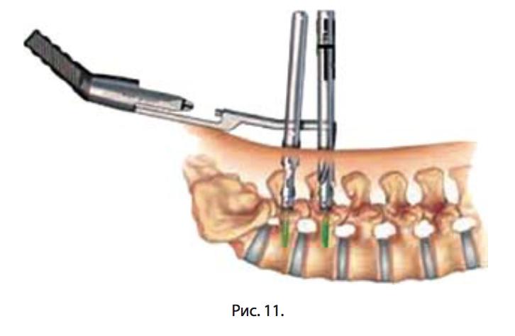 оперативное лечение остеохондроза позвоночника етот