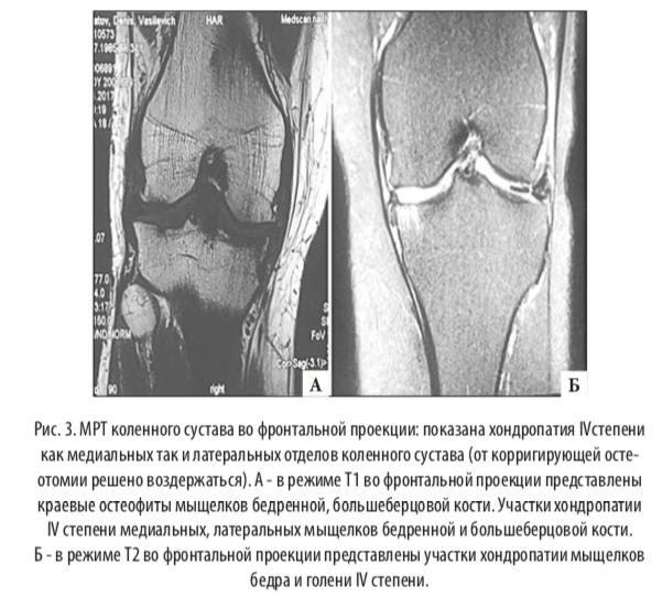 остеотомия малоберцовой кости при медиальном артрозе абсолютно