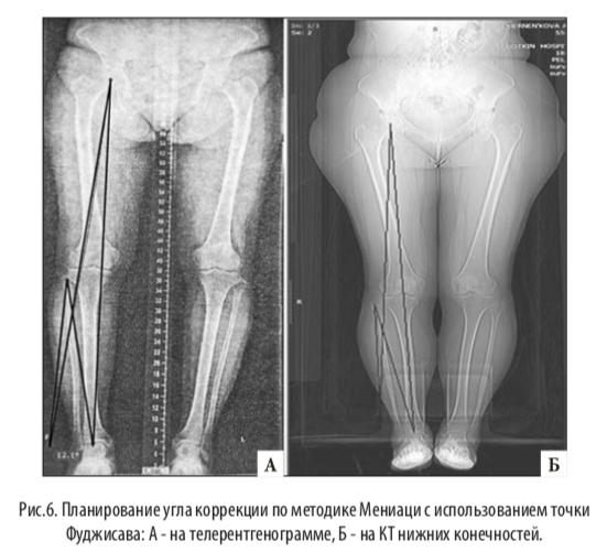 остеотомия малоберцовой кости при медиальном артрозе что